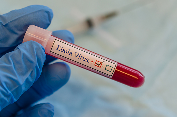 Test tube labeled Ebola virus