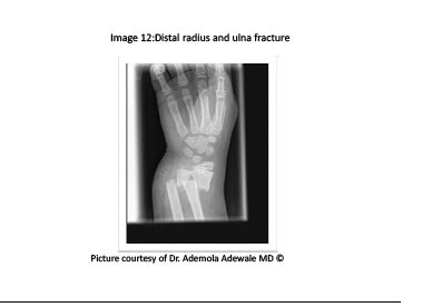 PDMR0711 figure 13 distal radius and ulna fracture.pdf