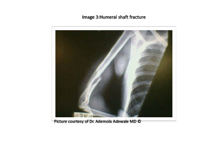 PDMR 0711 figure 5 humeral shaft fracture.pdf