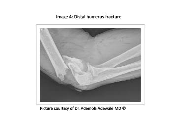 PDMR 0711 figure 6 distal humerus fracture.pdf