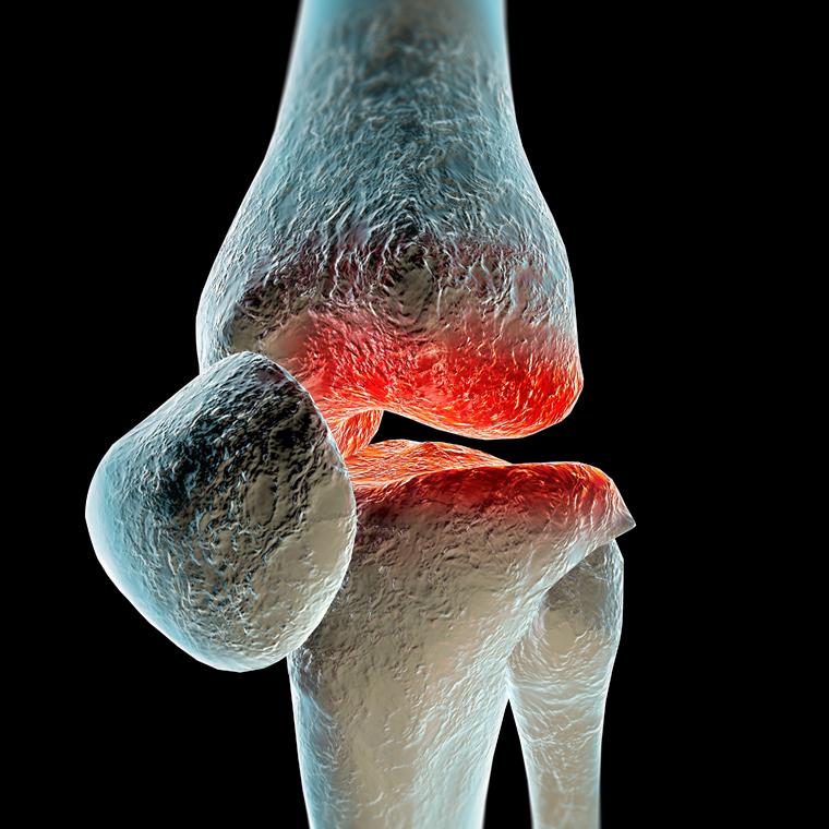 Osteoarthritis | 2015-05-07 | AHC Media: Continuing Medical