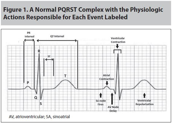 Figure 1 A Normal PQRST Complex with the Physiologic Actions Responsible for Each Event Labeled.