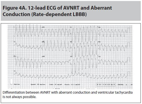 Figure 4A 12 lead ECG of AVNRT and Aberrant Conduction.JPG