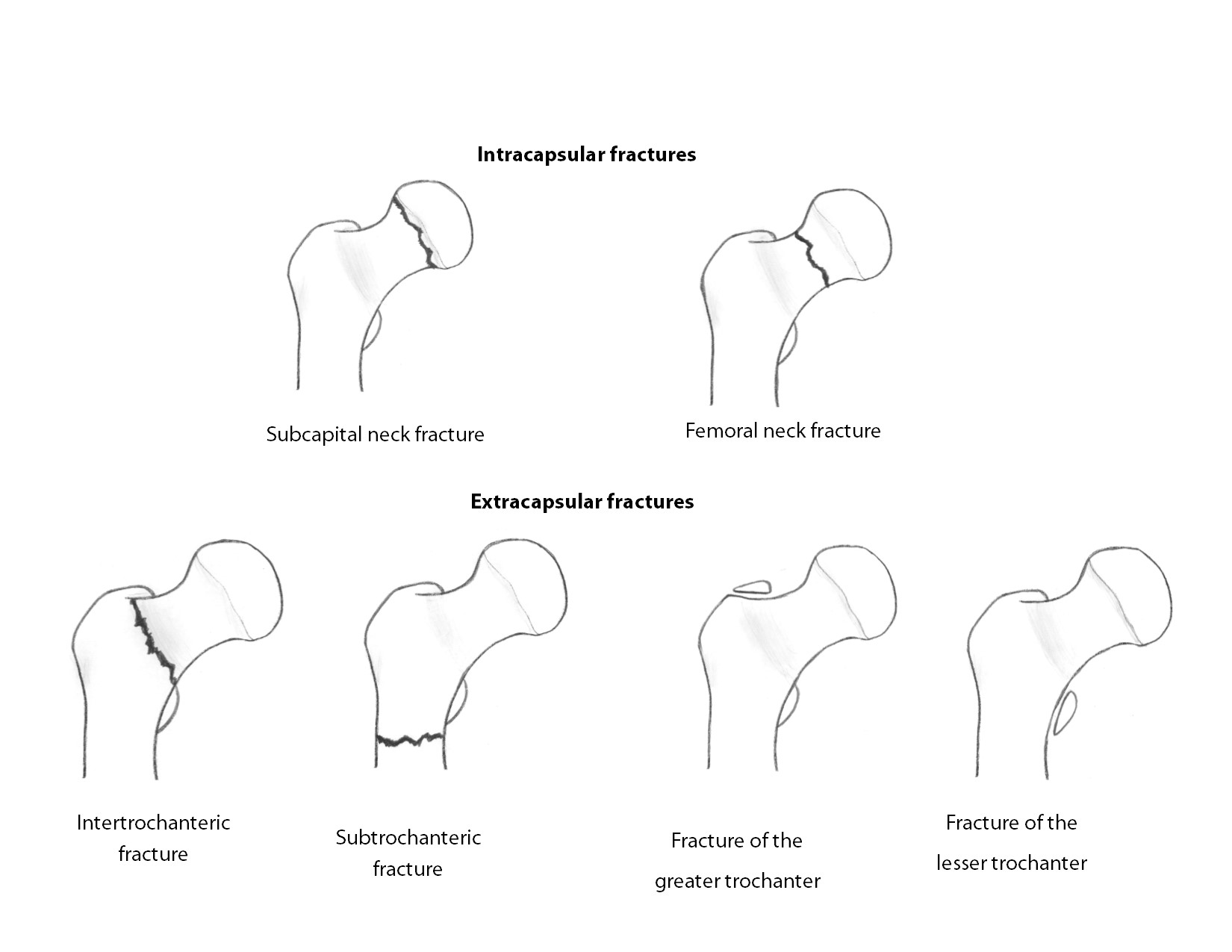 hip fracture classification