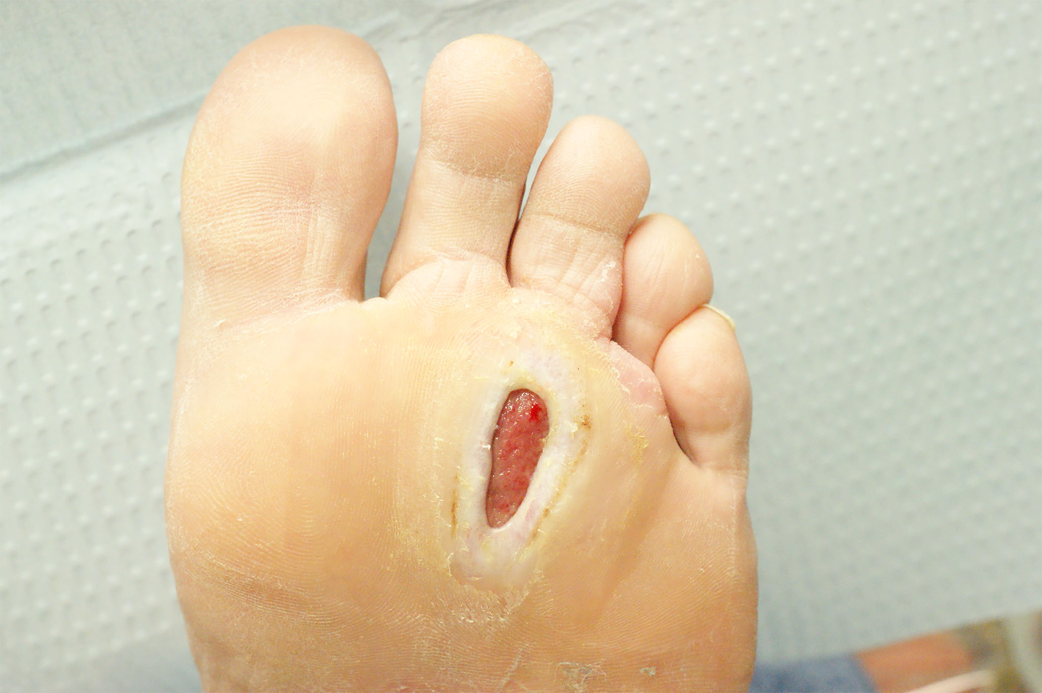 Peripheral Neuropathy And The Diabetic Foot 2017 02 21 Ahc