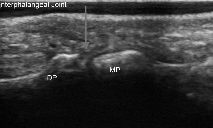 Distal Interphalangeal Joint Ultrasound