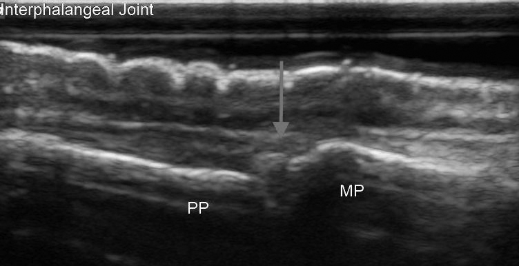 Proximal Interphalangeal Joint Ultrasound