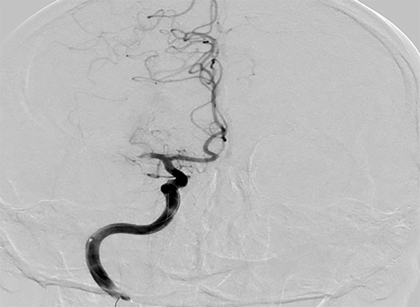 Occlusion of right middle cerebral artery