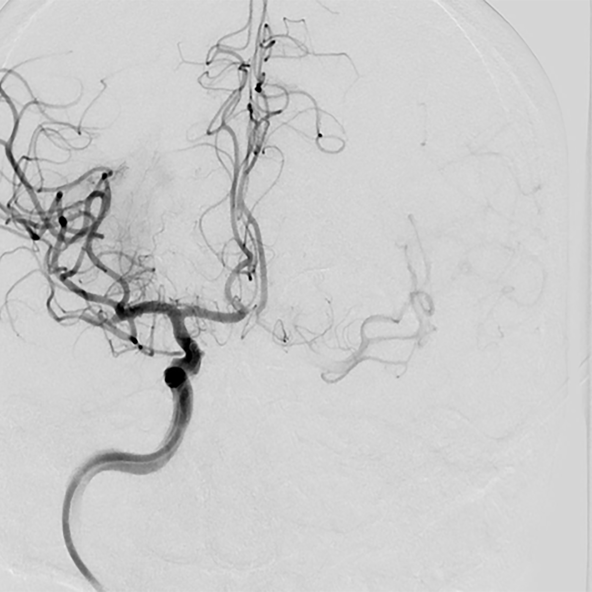 Revascularization of right middle cerebral artery