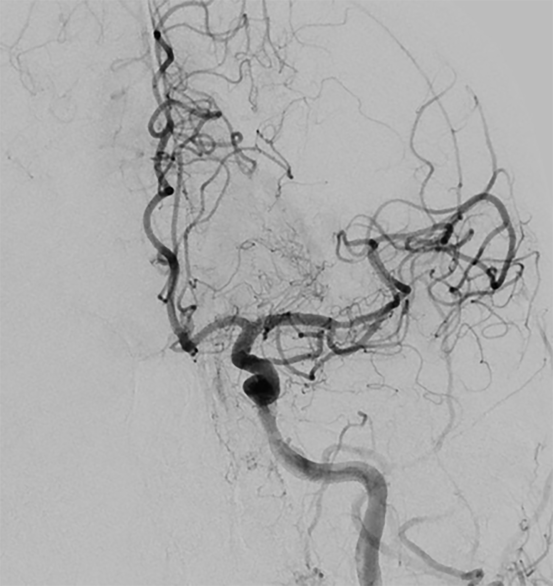 Revascularization of left middle cerebral artery