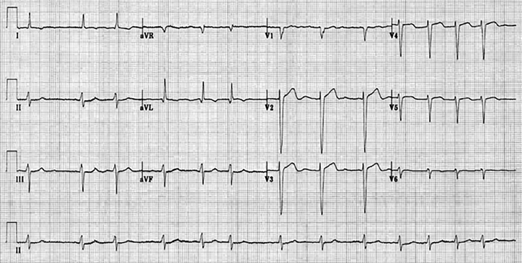 Atrial fibrillation with fine waves
