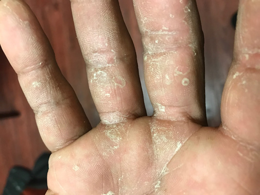 Skin Infestations: Fungal and Scabies   2018-04-03   AHC Media