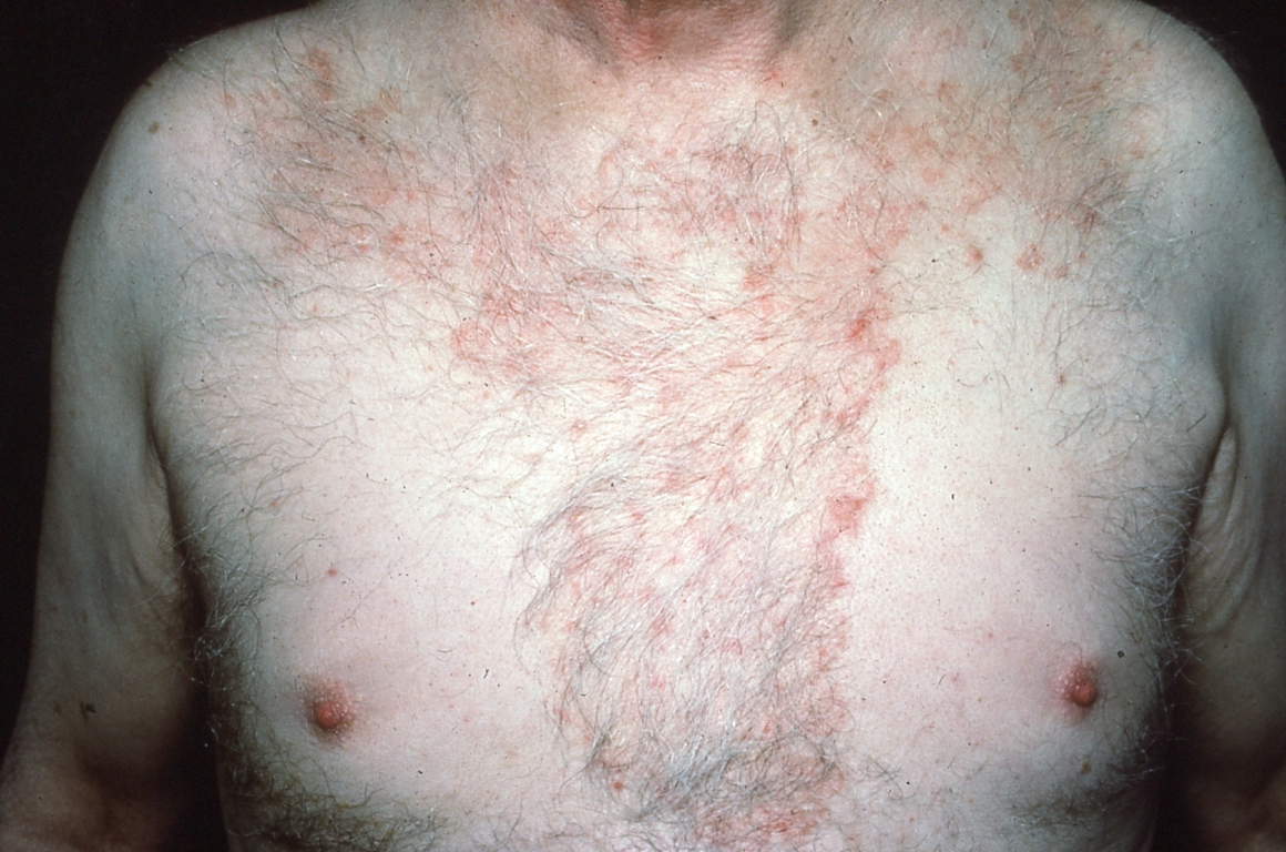 Not All Round Rashes Are Ringworm: A Differential Diagnosis