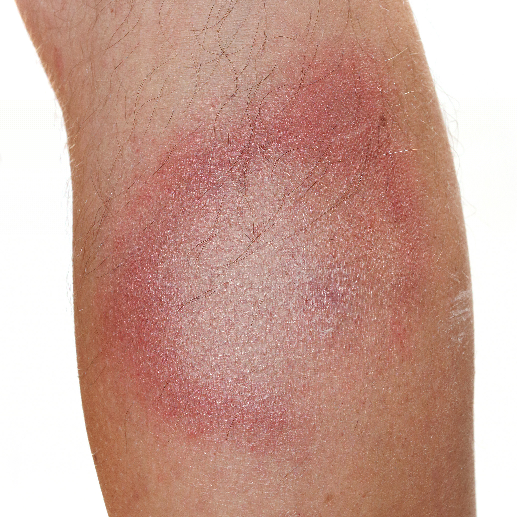 Erythema chronicum migrans