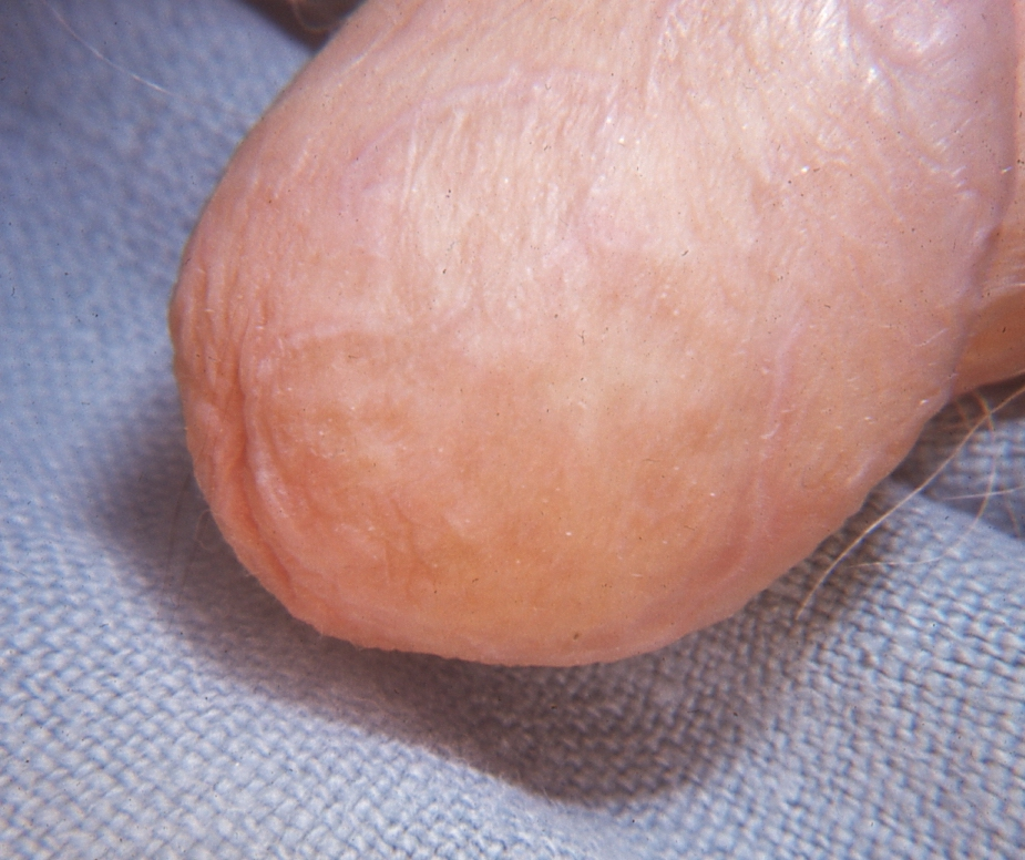 Figure 5. Annular Lichen Planus of the Glans Penis