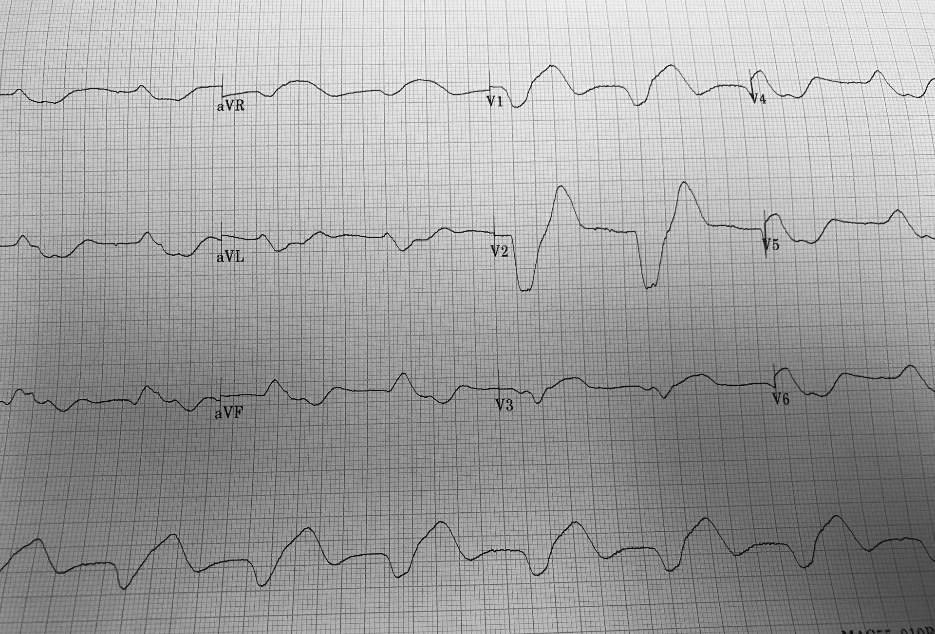 Electrocardiogram with a sine wave