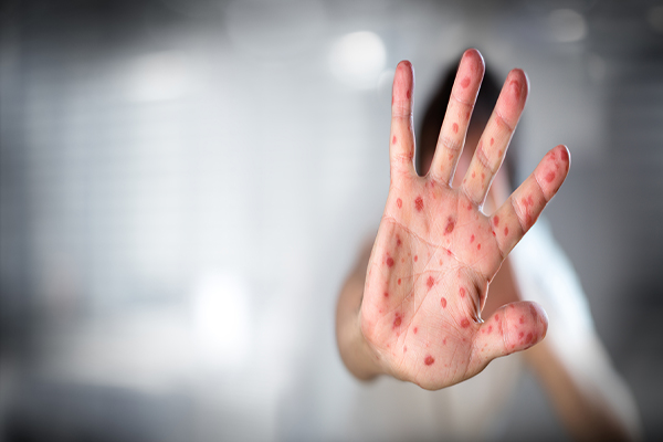 Measles Outbreaks Turning Tide Against Anti-Vaxxers