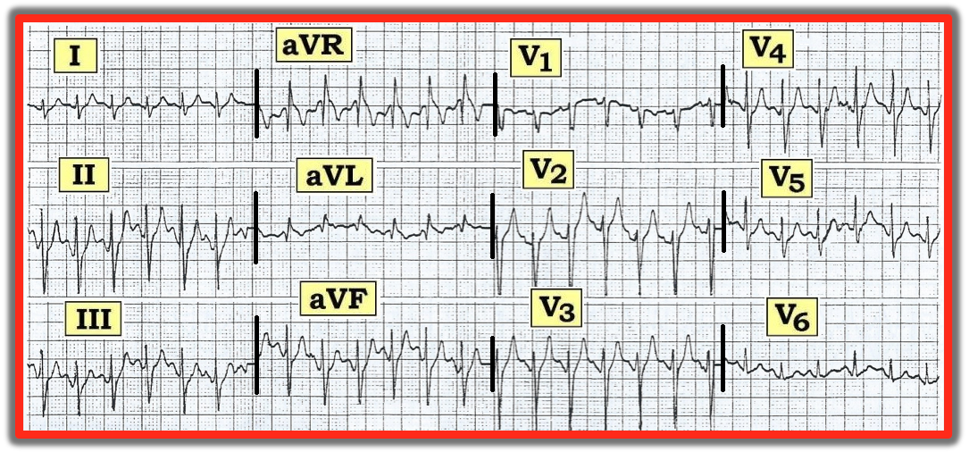 ECG Review 071515  sc 1 st  AHC Media & ECG Review: Sinus Tachycardia with Tall Peaked T Waves | 2015-07 ...