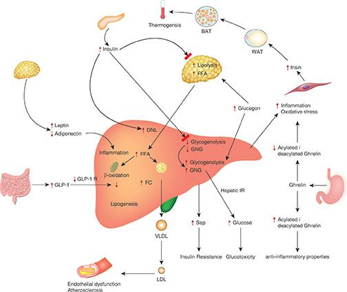 Nonalcoholic Fatty Liver Disease   2018-04-20   AHC Media
