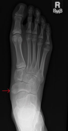 Pediatric Sports-Related Injuries of the Lower Extremity: Ankle