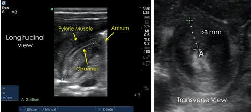 Pediatric Abdominal Ultrasound: A Comprehensive Guide to