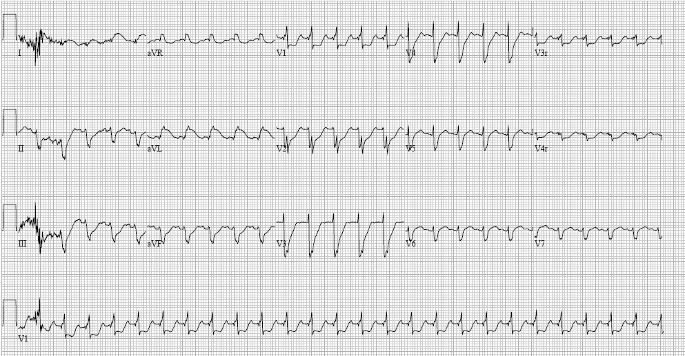 Electrocardiogram Showing Myocarditis