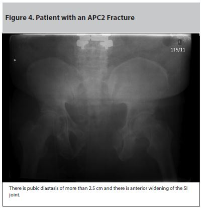Figure 4. Patient with an APC2 Fracture